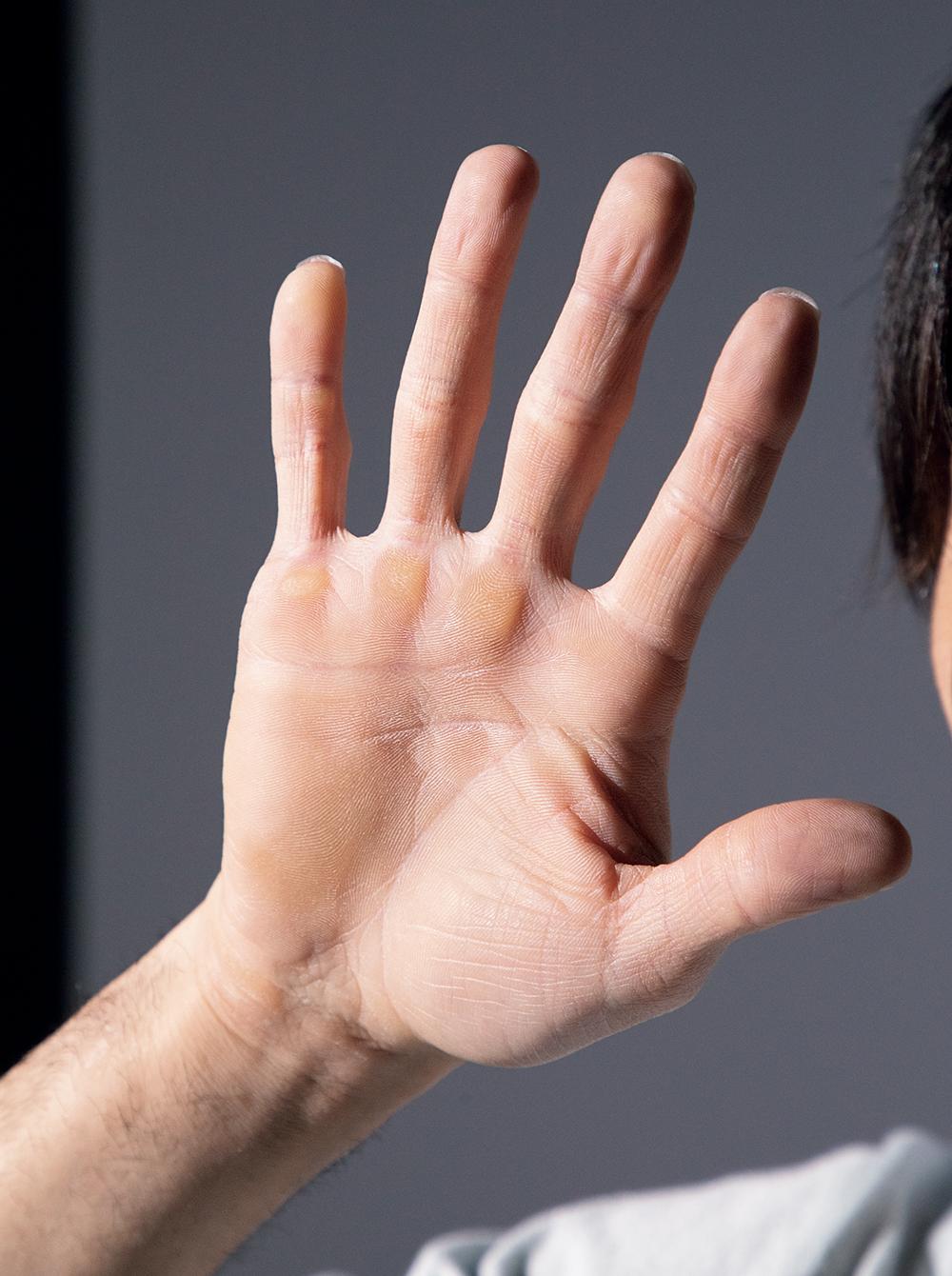 内村航平さんの手